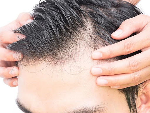 Hair Transplant Method